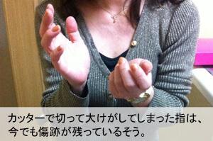 カッターで切って大けがしてしまった指は、今でも傷跡が残っているという伊藤さん